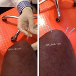 科比晒德国膝伤治疗图